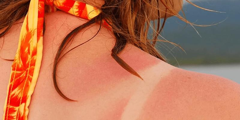queimadura solar