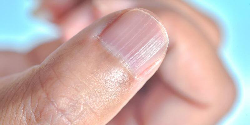 Tratamento para as unhas