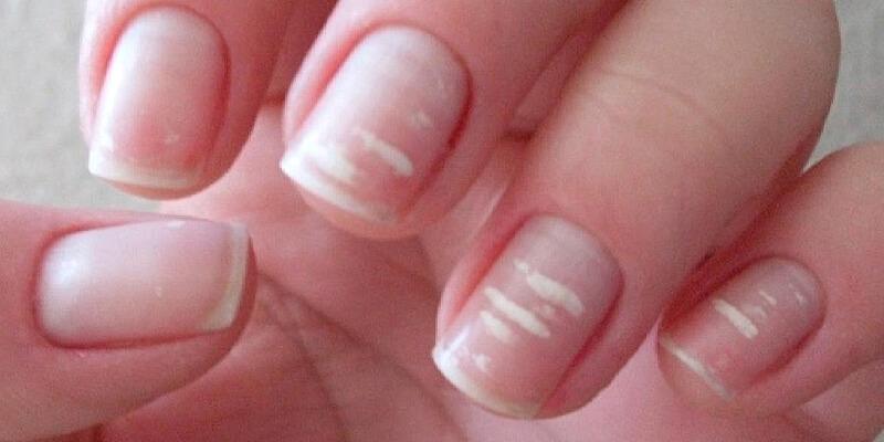 manchas brancas nas unhas