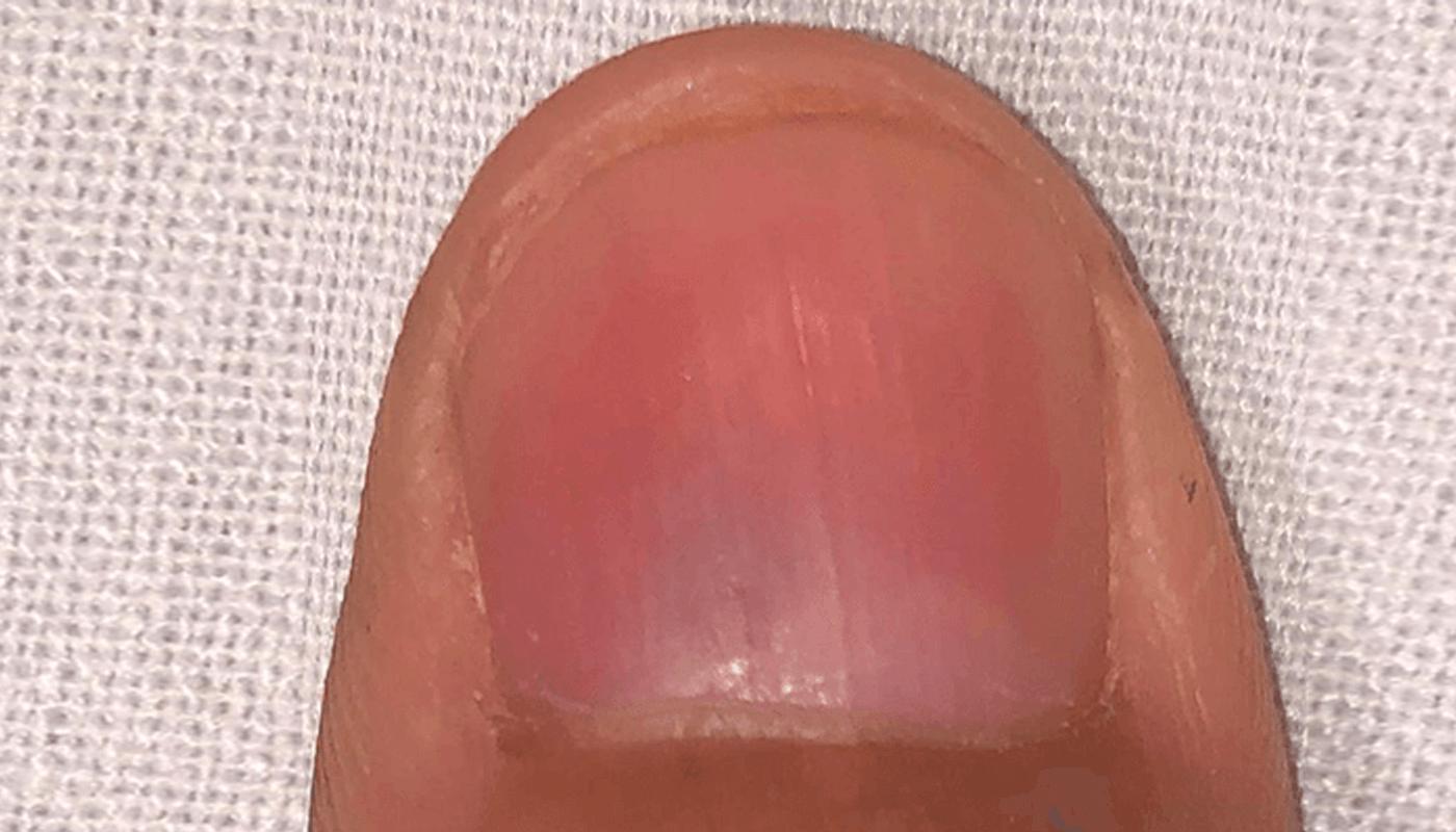 Dra_Tatiana_Gabbi-tumor-glomico-saiba-tudo-sobre-essa-lesao-benigna-que-causa-dor-nas-unhas