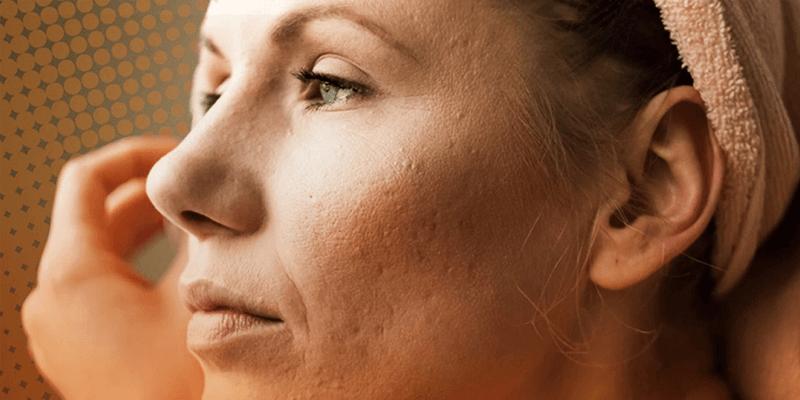 Dra-Tatiana-Gabbi-5-coisas-que-voce-nao-sabia-sobre-a-acne-na-menopausa